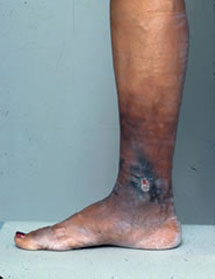 Venous treatment